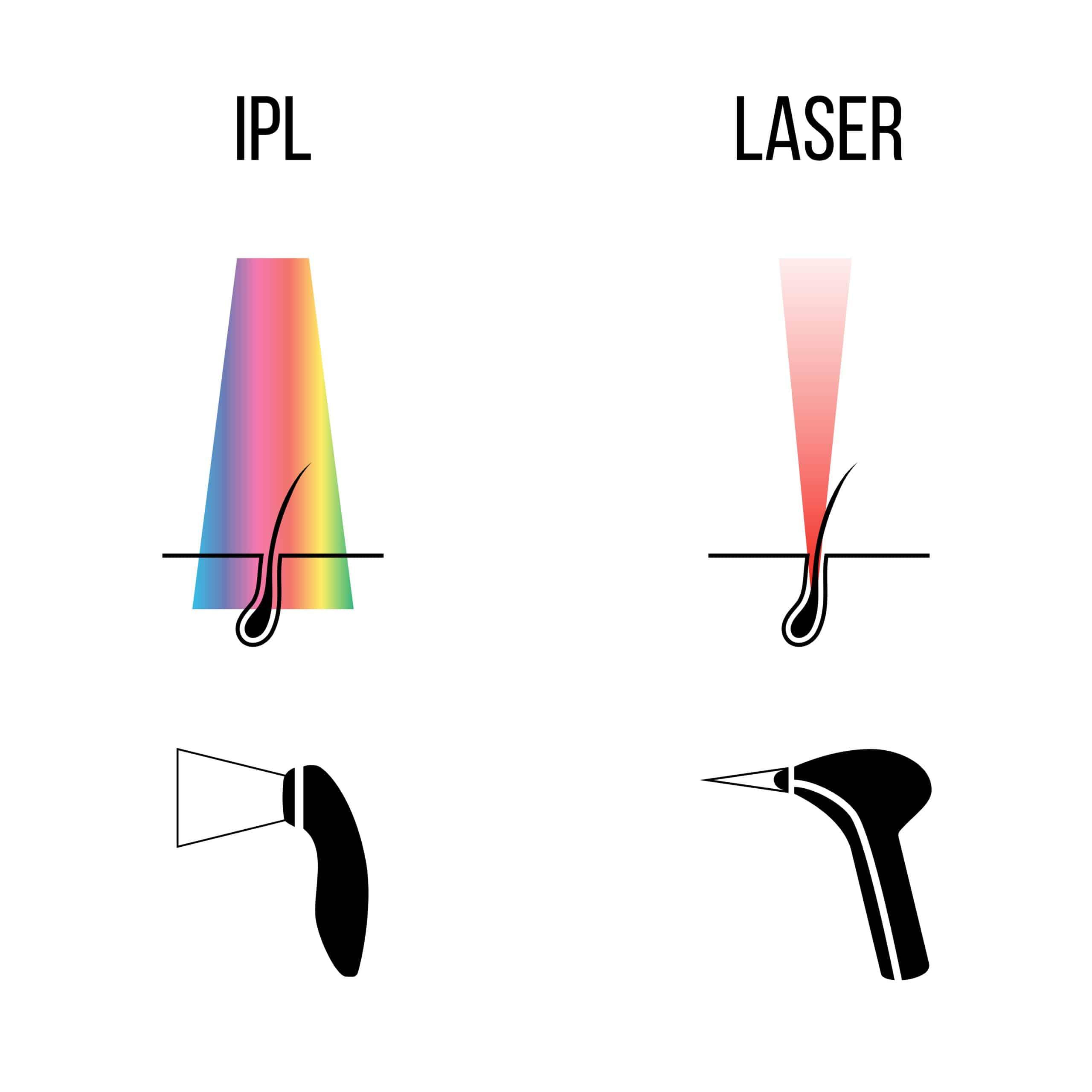 Unterschied Haarentfernung mittels IPL und Diodenlaser?